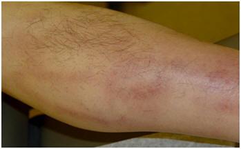 Thrombophlebitis Diagnose