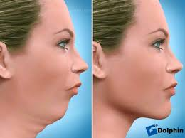 Image result for images of orthognathic surgery